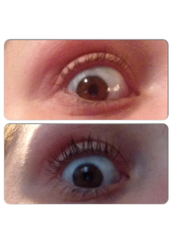 Top- scary eye, no mascara. Bottom- scary eye, one coat of mascara